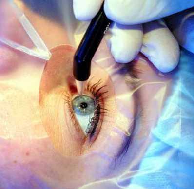 операция на сетчатке